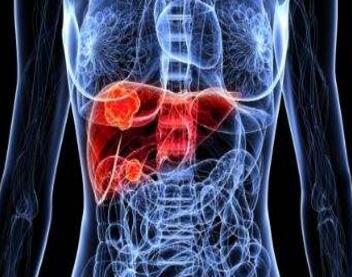 肝癌晚期病人怎样护理