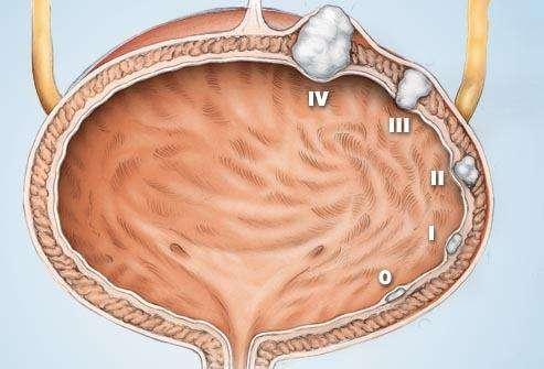 膀胱癌放疗的治疗方案