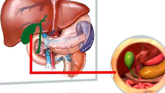 患胆囊癌的相关治疗原则