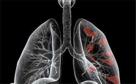 中医治疗肺癌